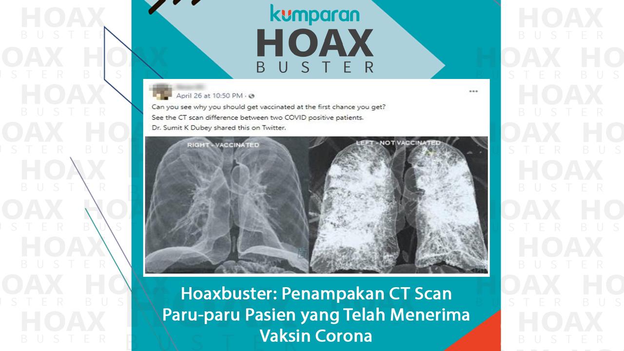 Hoaxbuster Penampakan CT Scan Paru-paru
