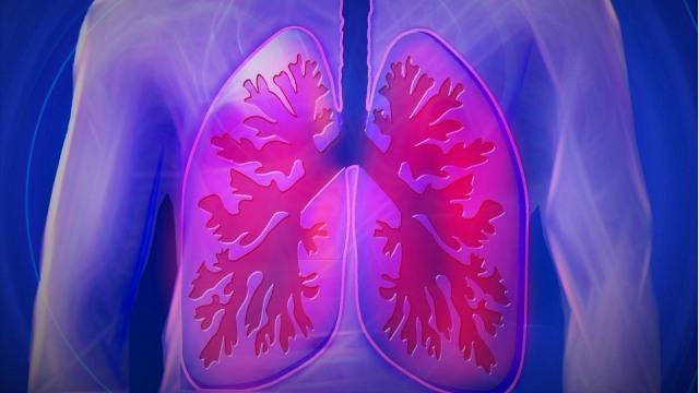 Mengenal Emfisema: Penyakit Pernapasan Ini Bisa Bikin Paru-paru Rusak (532452)