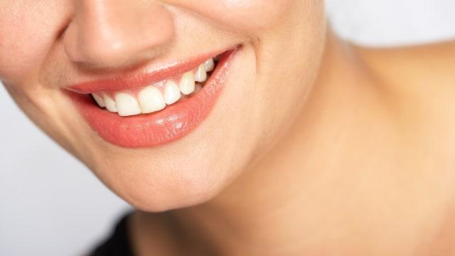 Senyum 5 Artis Sebelum dan Sesudah Reparasi Gigi (86259)