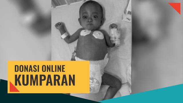 Donasi online untuk Bayi Mishalova