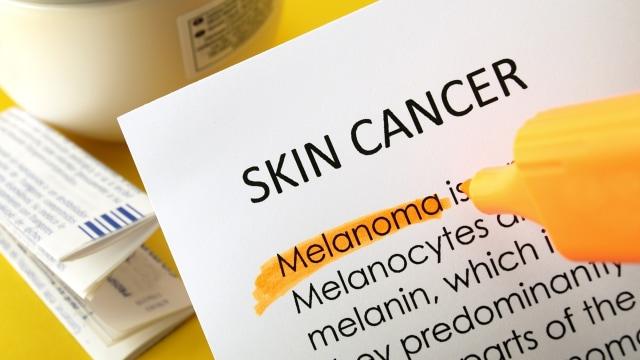 Kanker kulit