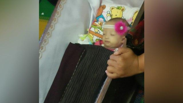 Debora meninggal di RS Mitra Keluarga Kalideres
