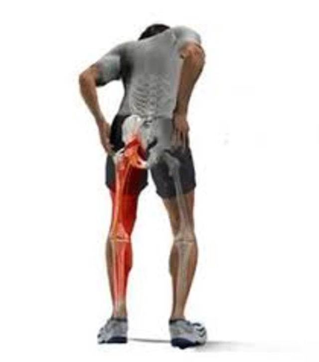 Cara mengatasi nyeri otot pundak