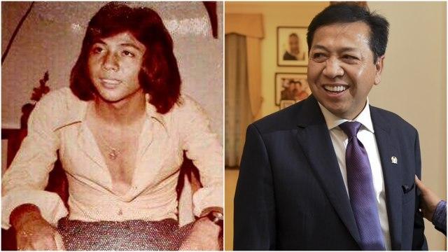 Foto Jadul Setya Novanto dan Gelar 'Pria Tampan Surabaya 1975' (493616)