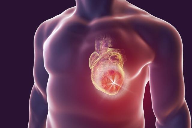 Bahaya Penyakit Jantung