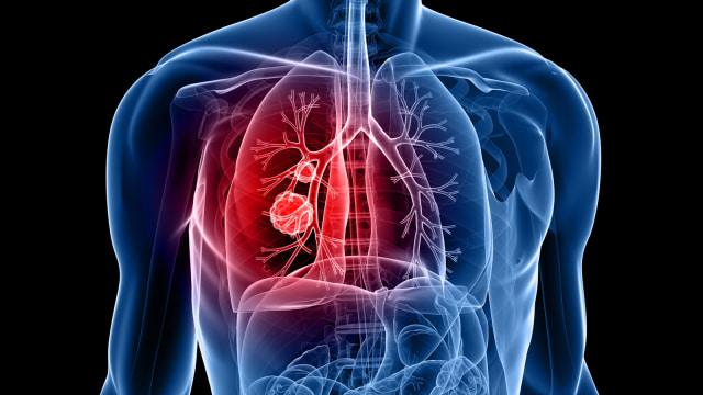 Ronsen kanker paru-paru