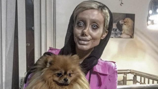 Wanita di Iran Operasi Wajah 50 Kali supaya Mirip Angelina Jolie (54653)