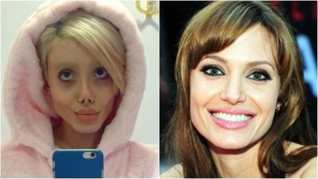 Wanita di Iran Operasi Wajah 50 Kali supaya Mirip Angelina Jolie (54652)