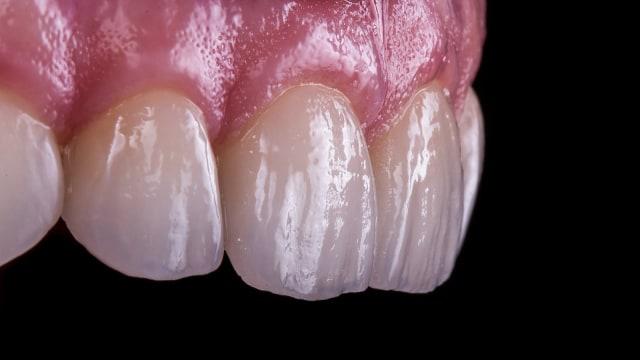 Efek Buruk Pakai Tusuk Gigi, Kerusakan Gusi hingga Bau Nafas (62680)