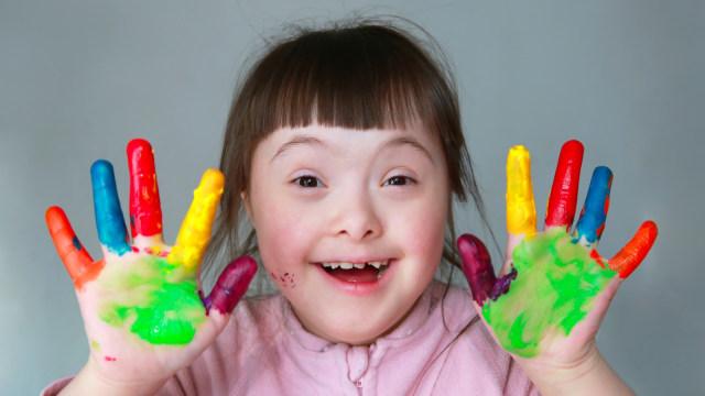 Menghadapi anak dengan down syndrome