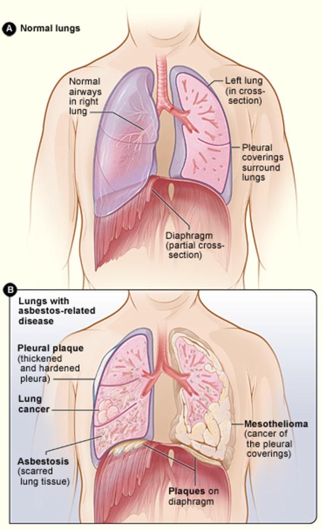Kondisi Paru Penderita Asbestosis