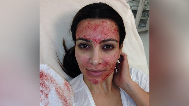 Facial darah Kim Kardashian