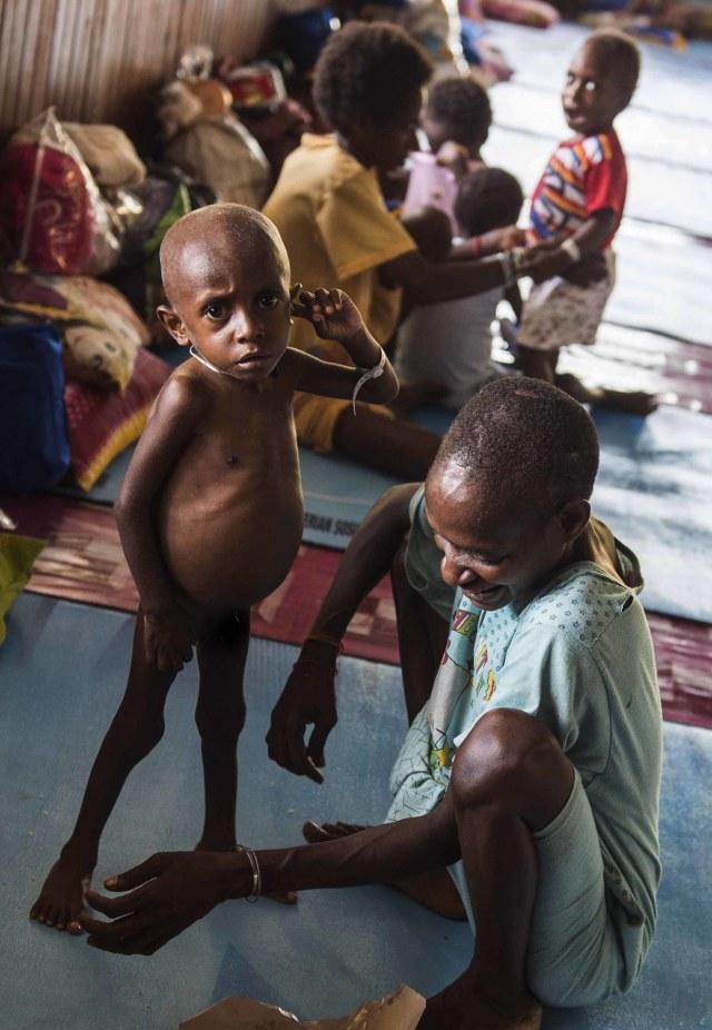 Gara-gara Pandemi dan Resesi, FAO Ungkap 132 Juta Orang Jadi Kelaparan (76304)