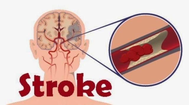 Pencegahan Penyakit Stroke - kumparan.com