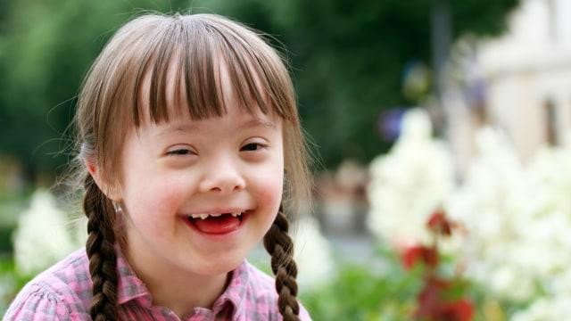 Ilustrasi anak down syndrome.