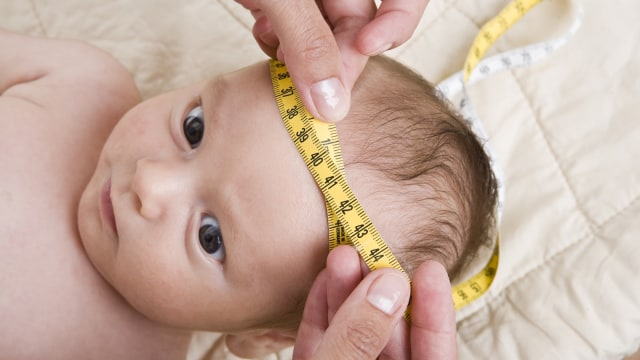 Ciri-ciri Bentuk Kepala Bayi yang Normal (335886)