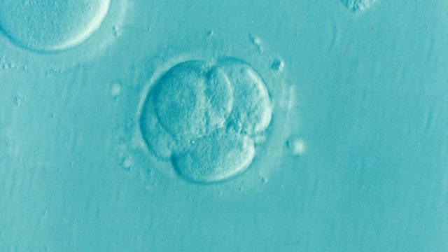 Bayi 'Tertua' di Dunia Berhasil Lahir, Hampir Seumur Ibunya (25775)