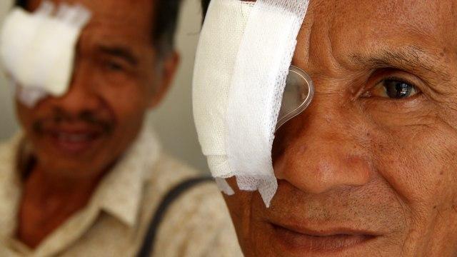 Manfaat Daun Kelor untuk Mata: Bisa Melindungi dari Risiko Katarak, Lho (1)