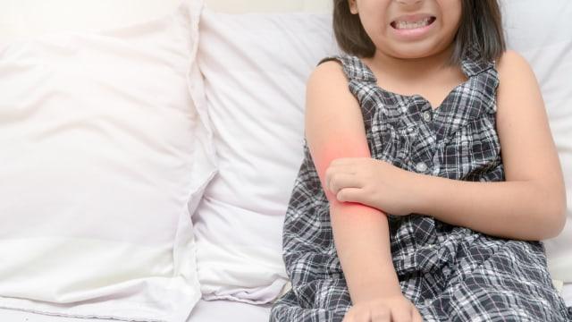 Manfaat Kunyit Hitam untuk Kesehatan Anak (129243)