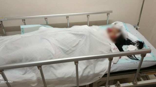 Seorang wanita korban begal di Tangerang Kota.