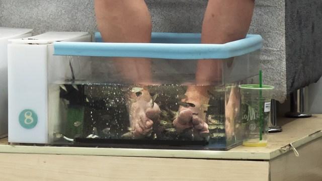 Semua Jari Kaki Kanan Seorang Perempuan Diamputasi akibat Terapi Ikan  (749017)
