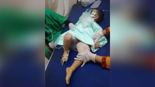 Anak kecil korban ledakan di Pasuruan