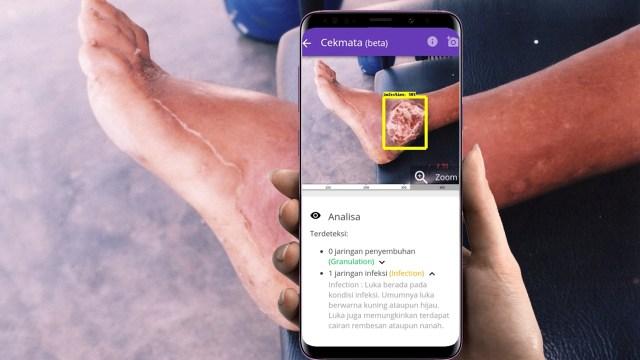 Startup CekMata.com Pakai Teknologi AI untuk Cek Luka Diabetes (69067)