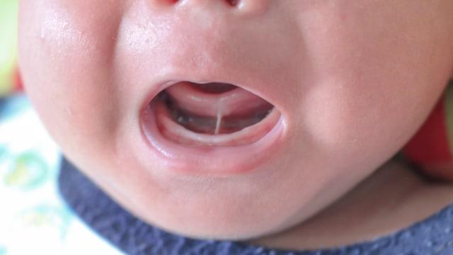 Tongue tie pada bayi.