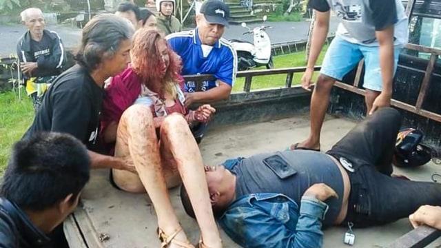 Mikey Lythcott dan Stacey Eno kecelakaan di Bali