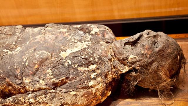5 Koleksi Unik Sekaligus Menyeramkan di Mutter Museum, Amerika Serikat (602297)