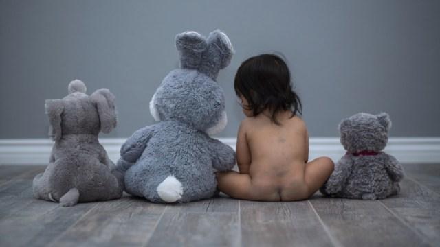 6 Jenis Tanda Lahir pada Bayi (78457)