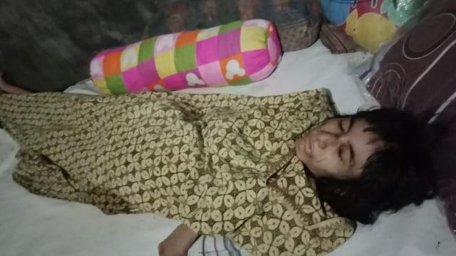 Kondisi terakhir Meta yang masih terbaring di rumahnya di Mojokerto, Jawa Timur