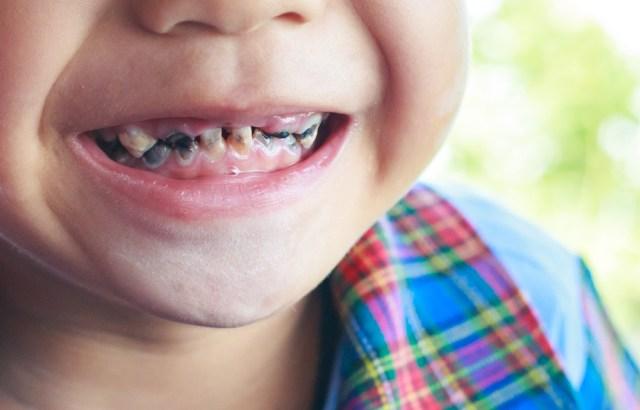Ilustrasi karies gigi pada anak