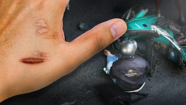 Foto Orang Lecet Jatuh Dari Motor Foto Foto Keren