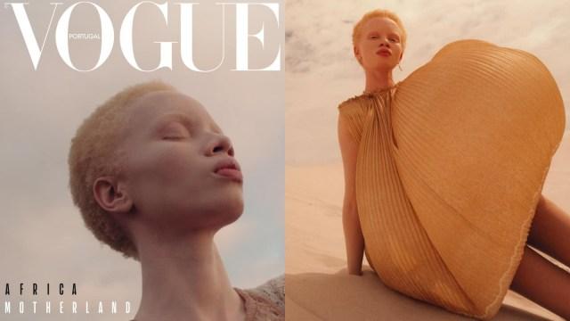 Thando Hopa, Cover Model Albino Pertama di Majalah Vogue Portugal