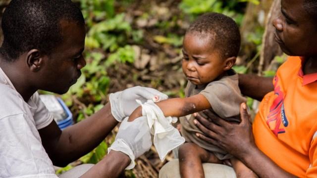 Seorang anak terinfeksi Monkeypox di Afrika