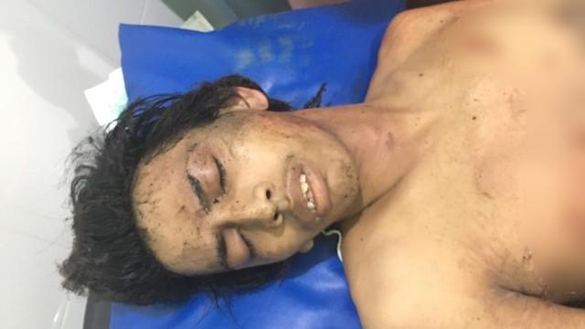 Terduga pelaku bom bunuh diri di Sukoharjo