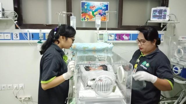 Bayi kembar siam lahir di Buleleng, Bali