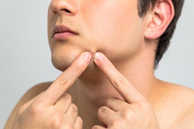 Jangan Dipencet, Ini 5 Cara Mengatasi Komedo pada Pria (5268)
