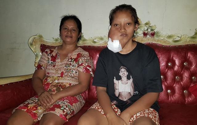 frili pemunda penderita tumor 1.jpg