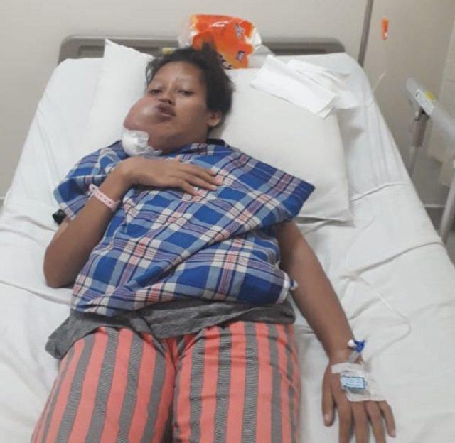 frili sisilia pemunda penderita tumor wajah.png