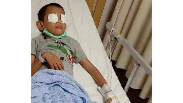 Derita Bocah 7 Tahun di Jambi Alami Iritasi Mata Akibat Asap Karhutla (344988)