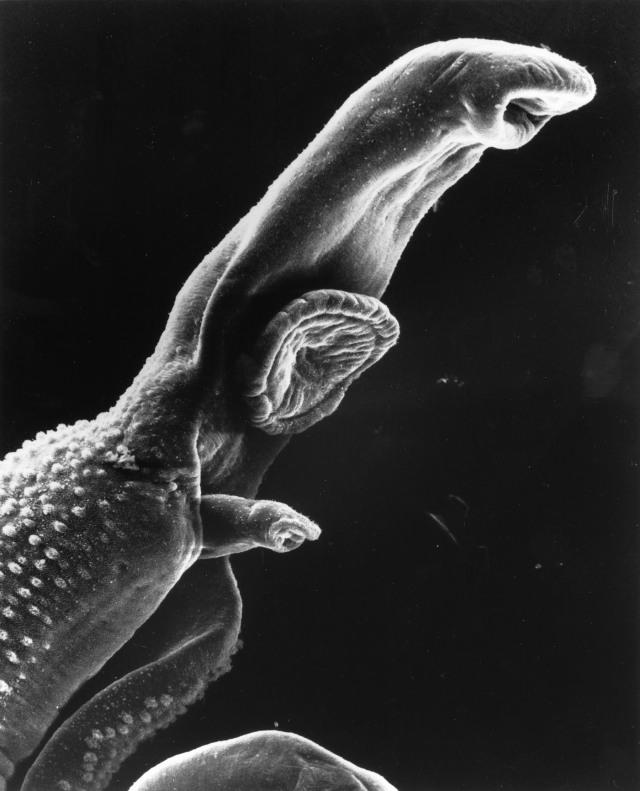 Pria asal Inggris Klaim Penisnya Terinfeksi Parasit Berbahaya (1020514)
