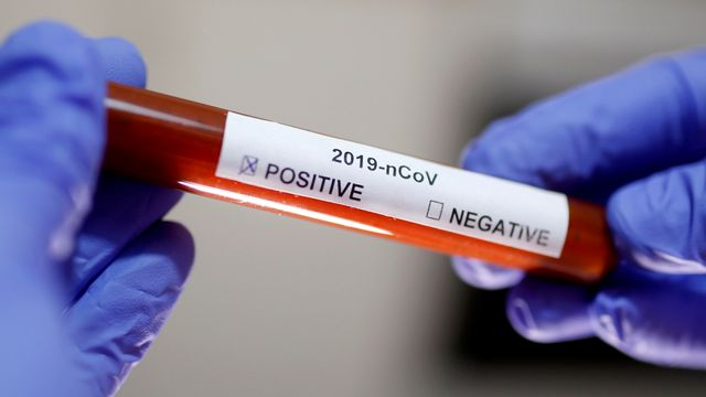 ilustrasi Positif virus corona