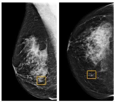 kecerdasan buatan Google deteksi kanker payudara