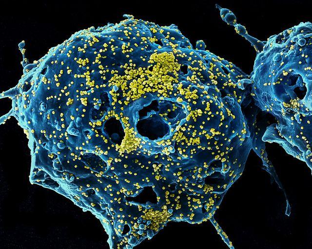 Gambar virus MERS