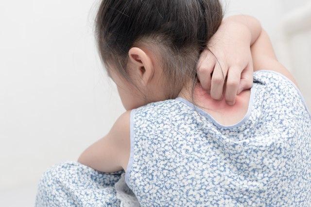 Reaksi Alergi Bikin Anak Gampang Tantrum, Begini Cara Mengatasinya (65458)