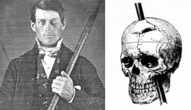 phineas-gage.png