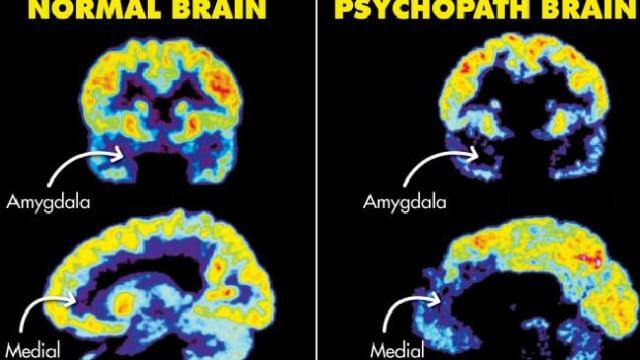 Perbedaan otak psikopat.jpg