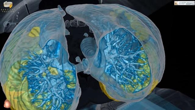 Tampilan render VR organ paru-paru pasien COVID-19